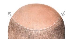 Haarpigmentierung Aachen