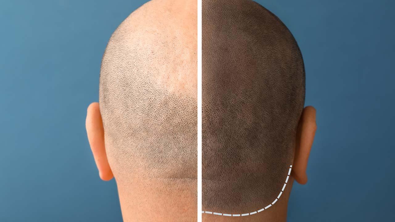 Haarpigmentierung Dresden