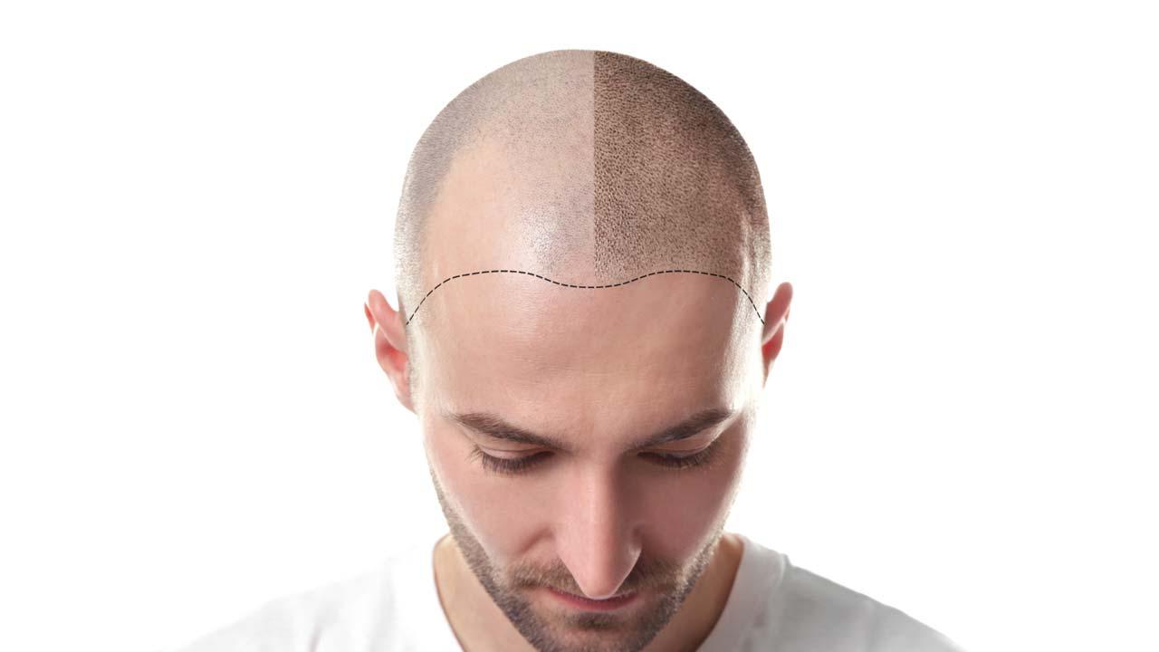 Haarpigmentierung Essen