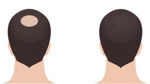 Haarpigmentierung Gelsenkirchen