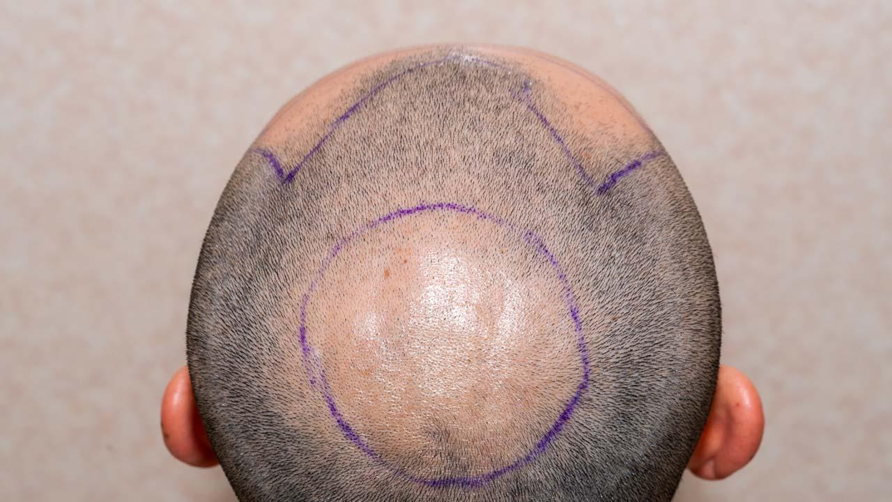 Haarpigmentierung Salzgitter