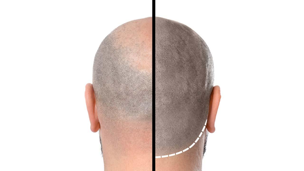 Haarpigmentierung Trier