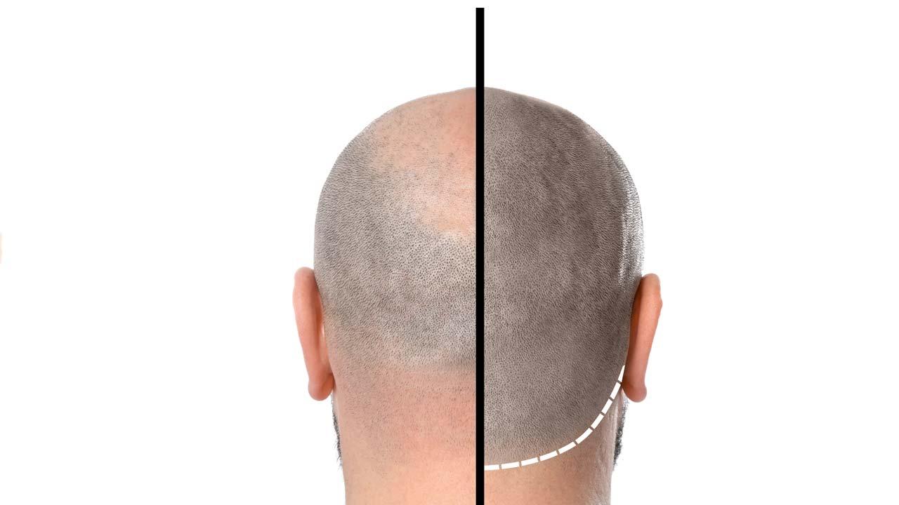 Haarpigmentierung Wolfsburg