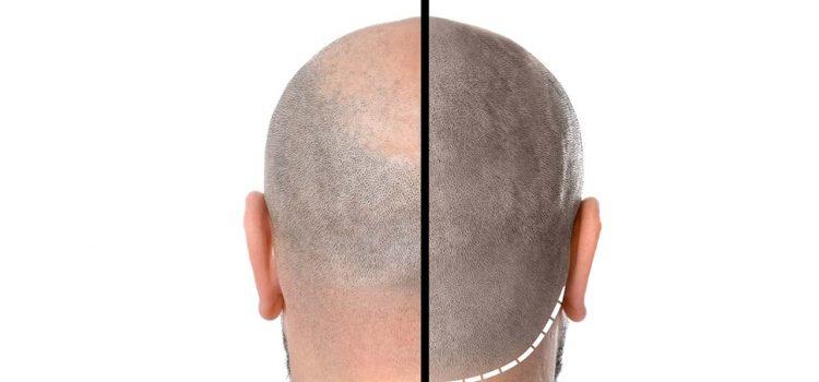 Haarpigmentierung Ingolstadt