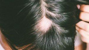 Haarpigmentierung Lübeck