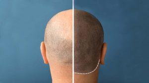Haarpigmentierung Mannheim