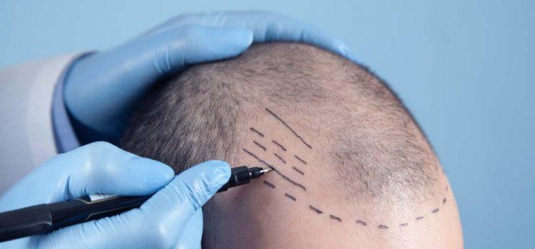 Haarpigmentierung Wuppertal