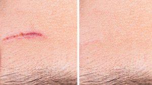 Narben Pigmentation Herne