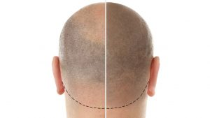 Haarpigmentierung Bielefeld