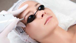 Permanent Make-up entfernen Leverkusen